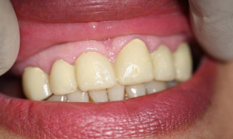 Anterior-Esthetic-Bridge-with-Precision-Attachment-Denture-After-Image