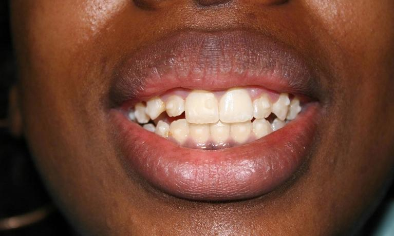 Esthetic-Crown-Lengthening-and-Invisalign-After-Image