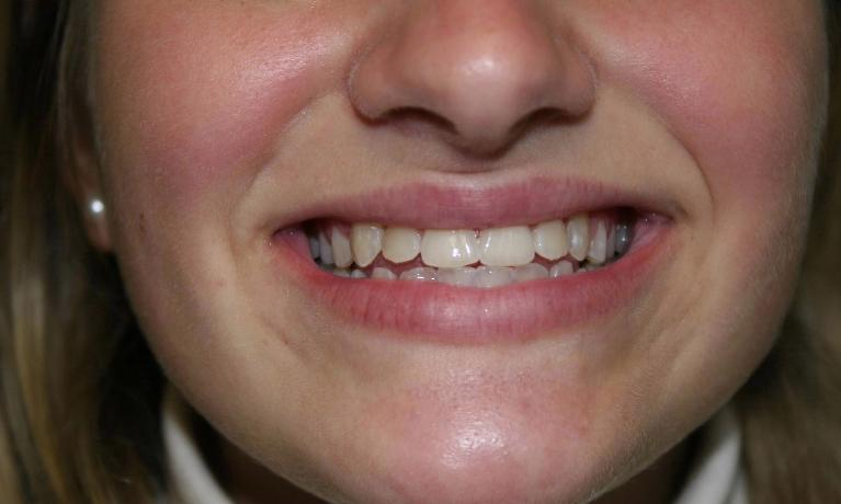 Invisalign-Case-and-Zoom-whitening-After-Image
