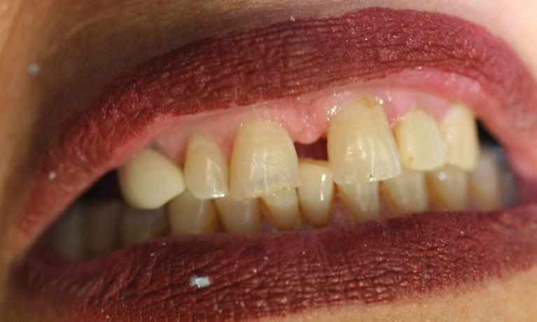 Anterior-Esthetic-Bridge-with-Precision-Attachment-Denture-Before-Image