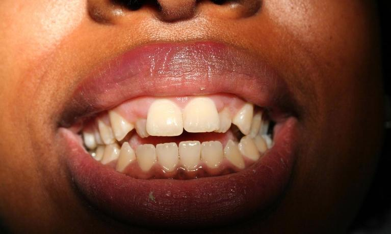 Esthetic-Crown-Lengthening-and-Invisalign-Before-Image