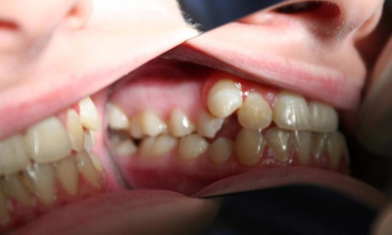 Invisalign-Case-and-Zoom-whitening-Before-Image